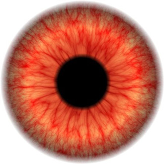 'Why Are My Eyes Red All the Time?' - Common Causes of ...